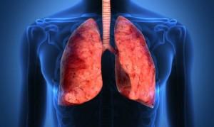 cancro-al-polmone